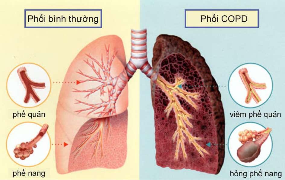 Hướng dẫn dùng Sâm điều trị bệnh lao phổi